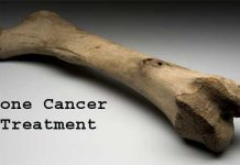 Bone Cancer Treatment,