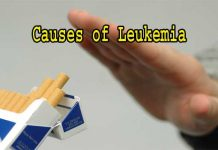 What Are The Causes of Leukemia
