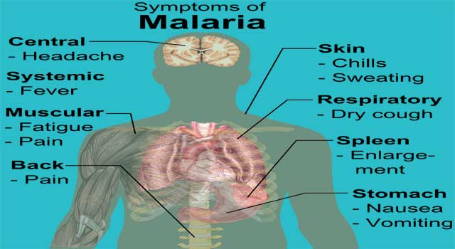 What is the Signs and Symptoms of Malaria