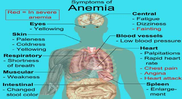 What are The Symptoms And Causes of Anemia - HowFlux