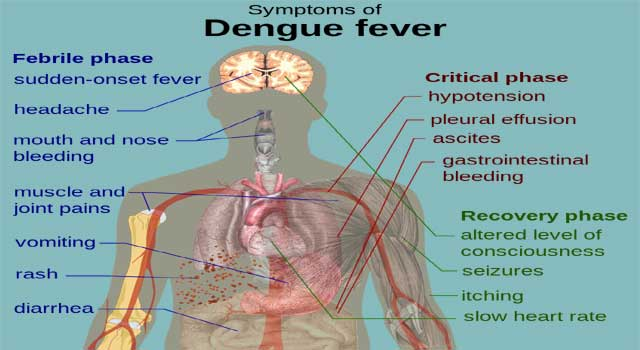 What is the Sign and Symptoms of Dengue Fever