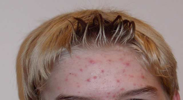 What is The Main Causes of Acne in Adults face - HowFlux