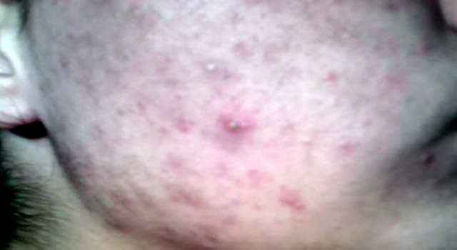 Best Treatment For Acne Scars on Face