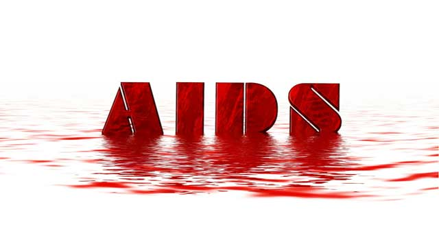 Information about Hiv and Aids Disease