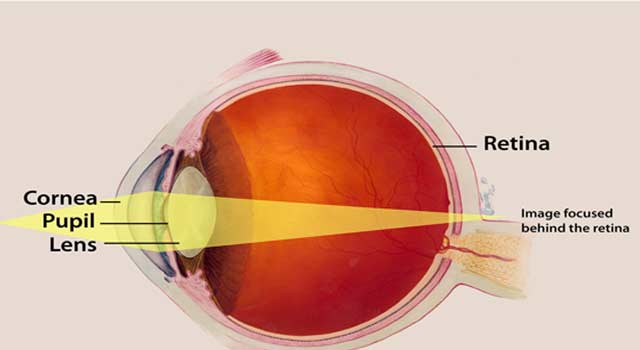 What is Meant by Long Sightedness - HowFlux