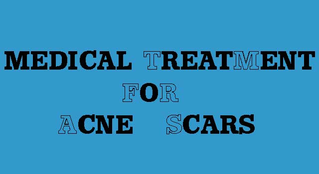 Medical Treatment For Acne Scars, Acne Treatment