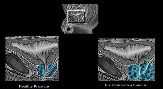 Best Treatment for Aggressive Prostate Cancer