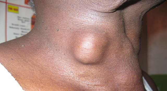Thyroid Cancer: Diagnosis, Prognosis and Treatment