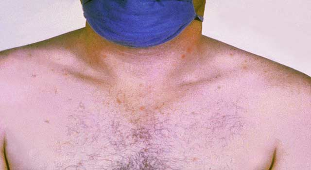 Typhoid Fever or Enteric Fever, Prevention and Diagnosis