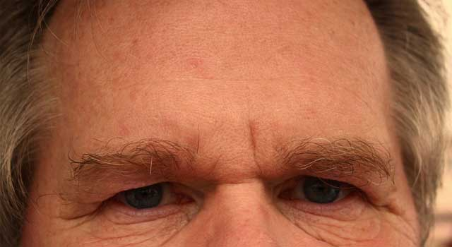 4 Steps to Get Rid of Bags Under Eyes Permanently