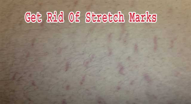 How To Get Rid of Stretch Marks using Home Remedies
