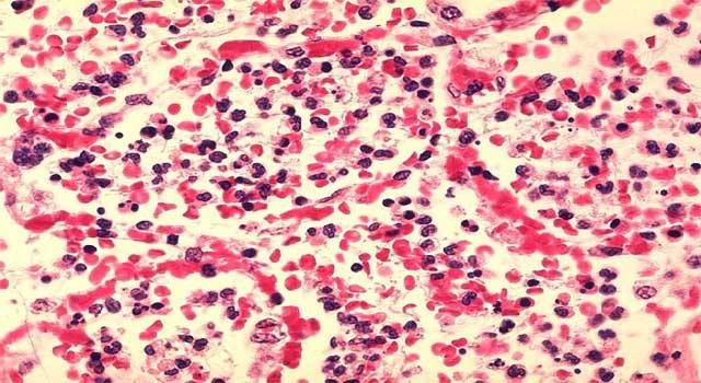 What are Various Types of Leukemia
