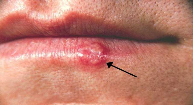 6 Home Remedies for Cold Sores on Lips that Really Work