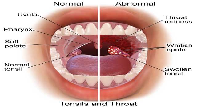 6 Good Home Remedies for Sore Throat Treatment