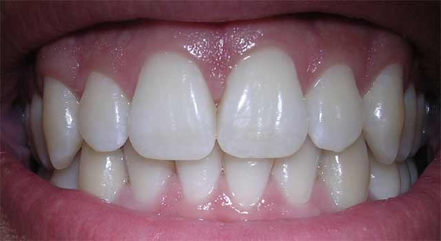 How to Make your Teeth Perfectly White