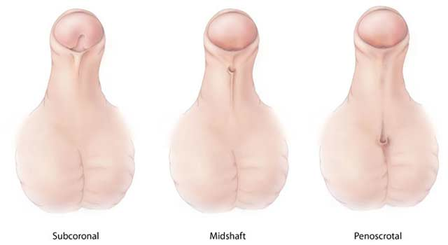 Show exercises for penis enlargement