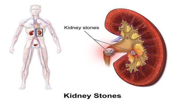 7 Best Ways to Get Rid of Kidney Stone Problem