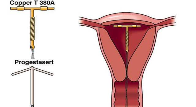 What is Copper-T - Intrauterine Device - HowFlux