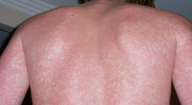 How to Get Rid of Permanent Eczema Scars