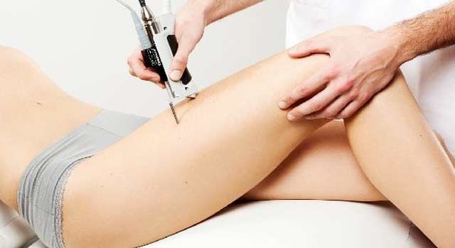How Does Laser Hair Removal Really Work (5 Steps)