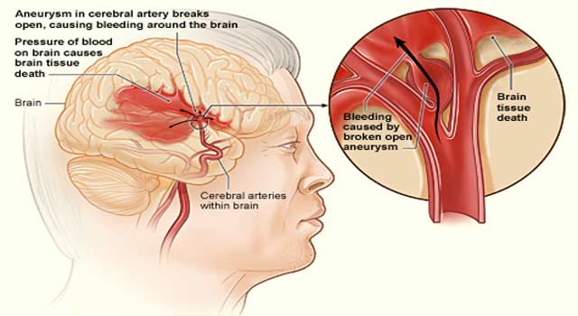 What is Brain Aneurysm and its Causes