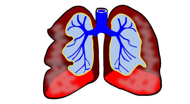 What is Pulmonary Hypertension and its Symptoms