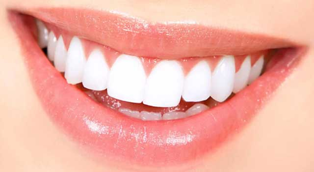6 Ways to Align your Teeth without Braces