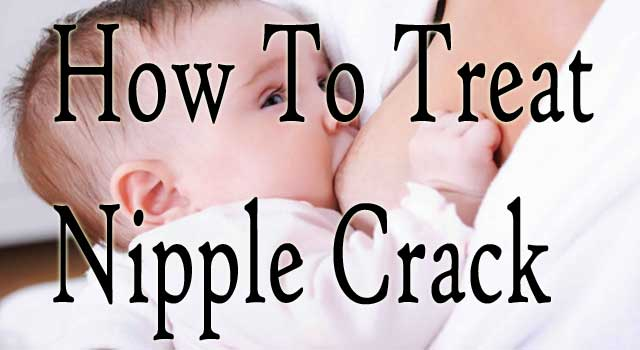 How to Treat a Cracked Nipple while Breastfeeding