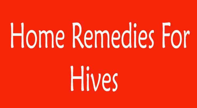 how to get rid of hives home remedies
