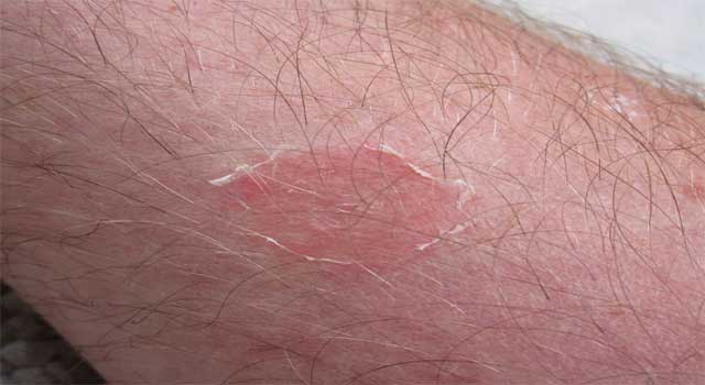 Home remedies to get rid of ringworm