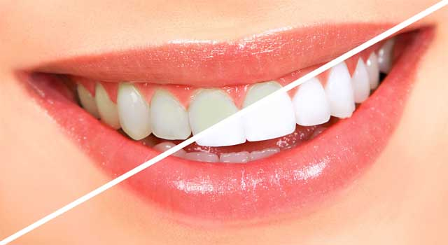 How to Keep Teeth White and Healthy
