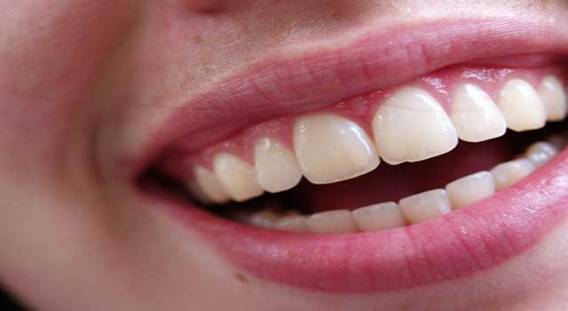 How to Make Your Teeth Pearly White At Home