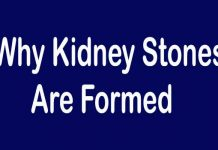 6 Reasons Why Kidney Stones Are Formed - HowFlux